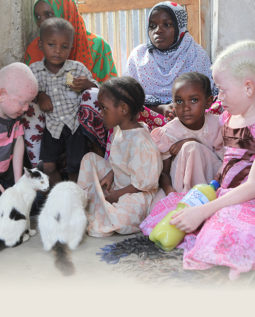 People with albinism face severe persecution